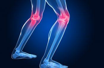 Arthritis study