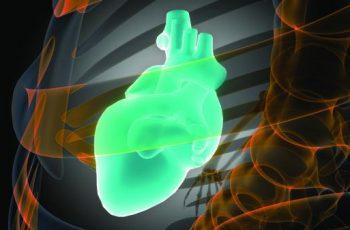 Kidney Study