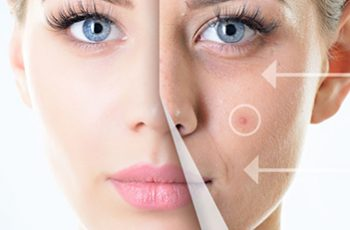 acne clinical trial