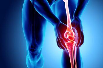 Knee Arthritis Study
