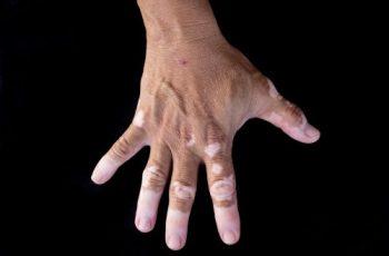 vitiligo study