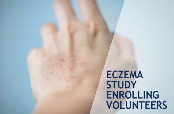 Eczema study 2